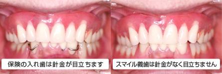 スマイル義歯との比較