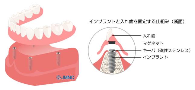インプラントによる総義歯