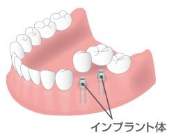 インプラントの導入イメージ