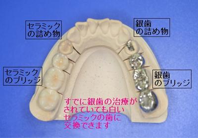 銀歯から白いセラミックの歯に交換できます