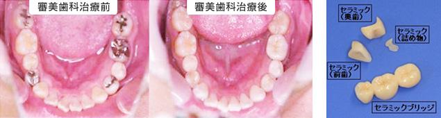 審美歯科の治療前後