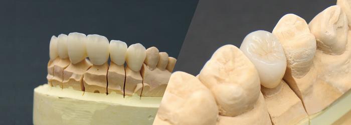 金属を使用しない身体にやさしいメタルフリー治療(審美歯科)