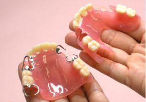 普通の入れ歯とスマイルデンチャー