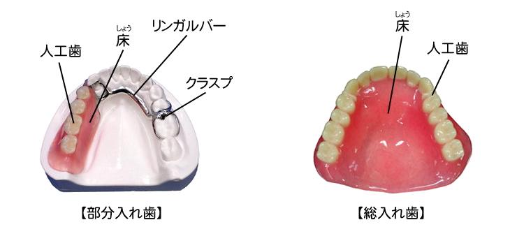 保険適用義歯(保険入れ歯)