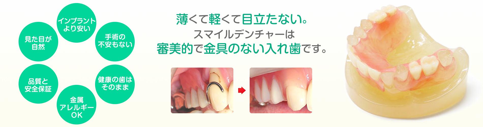 薄くて軽くて目立たない。スマイルデンチャーは審美的で金具のない入れ歯です。