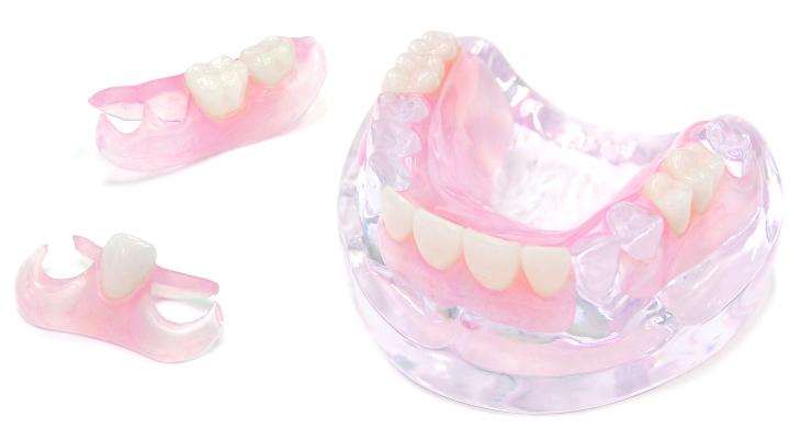 金具のない入れ歯スマイルデンチャー
